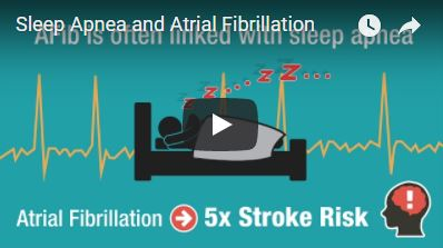 Sleep_Apnea_And_AFib.JPG